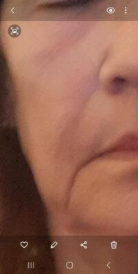 Den tørre hud er væk – min hud føles frisk, spændstig og fuld af glød
